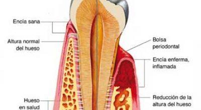 endodoncia1.jpg