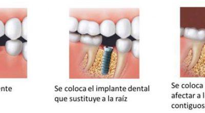 implantes2.jpg