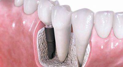 implantes5-scaled.jpg