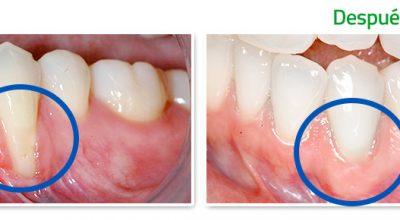 periodoncia1.jpg