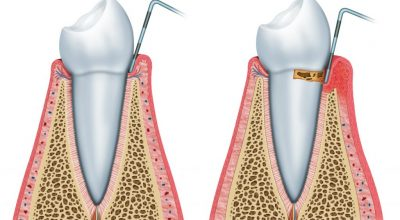 periodoncia4.jpg